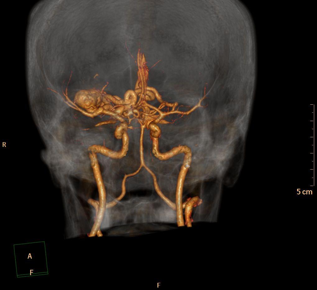 TDM avec injection au temps artériel  Reconstruction volumique
